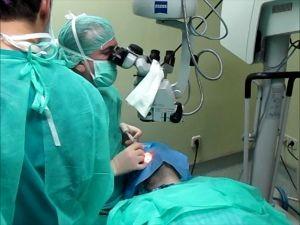 Cirugía ICL – La Intervención