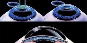 ¿Qué es la Cirugía Refractiva?