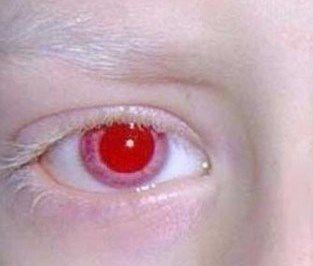 Curiosidad: ¿Sabías que… no existen los ojos de color negro pero si rojos?